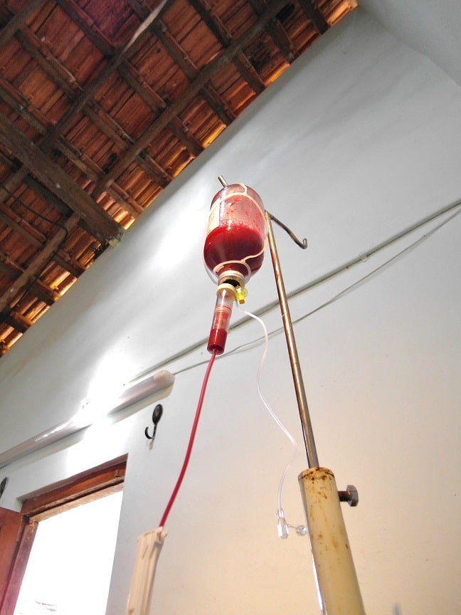 Ozone Autohemotherapy in India. Ozone therapy in India.